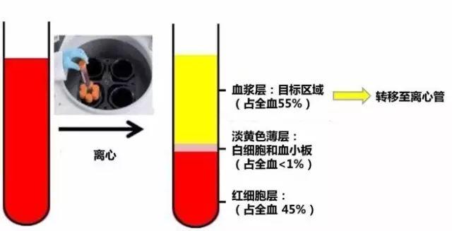 血浆EGFR/T790M基因突变检测标准流程